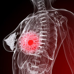 Breast-Cancer-Management